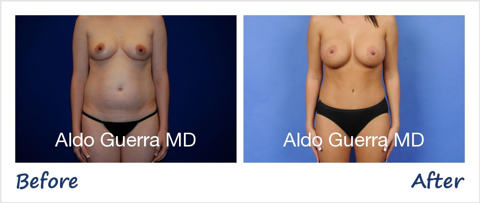 Actual mommy makeover + breast augmentation patient before and after photo