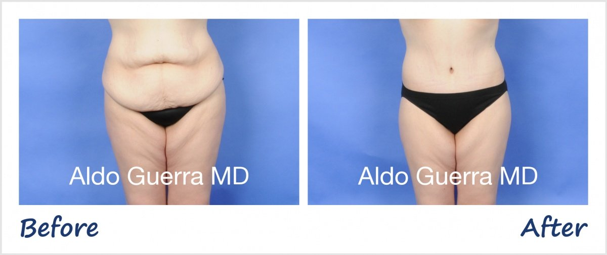 Actual extended tummy tuck patient before and after photo