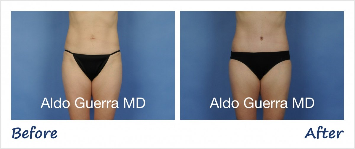 Actual tummy tuck patient before and after photo
