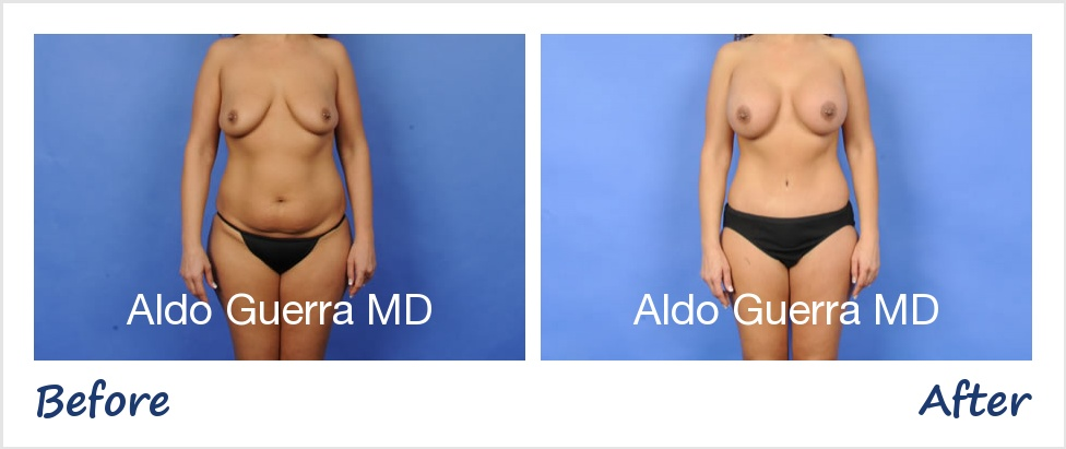 Actual mommy makeover + breast lift patient before and after photo