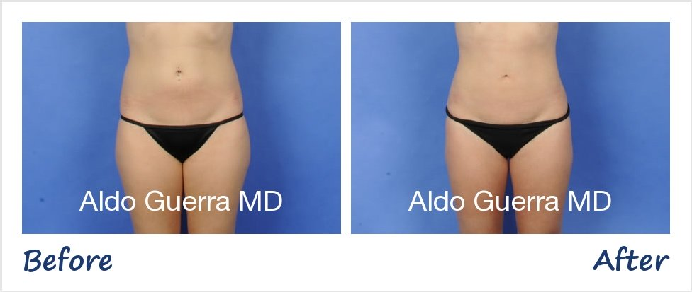 Actual liposuction patient before and after photo